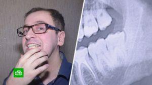 Перелом челюсти это статья